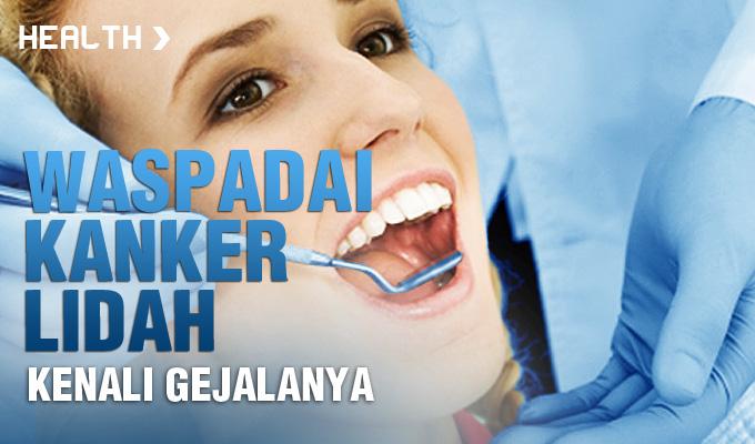 Wapadai-Kanker-Lidah