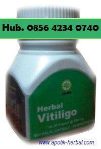 herbal vitiligo