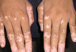 obat Penyakit vitiligo