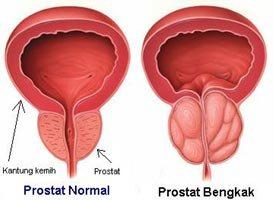 Pembengkakan Kelenjar Prostat atau Benign Prostatic Hyperplasia (BPH)